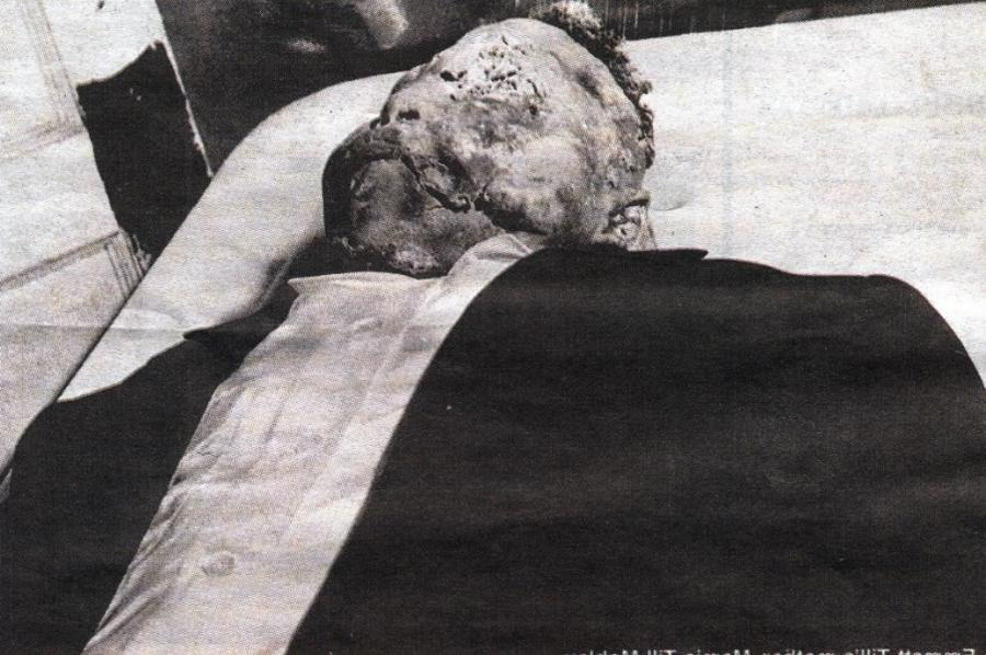Emmett Till Photos In Casket