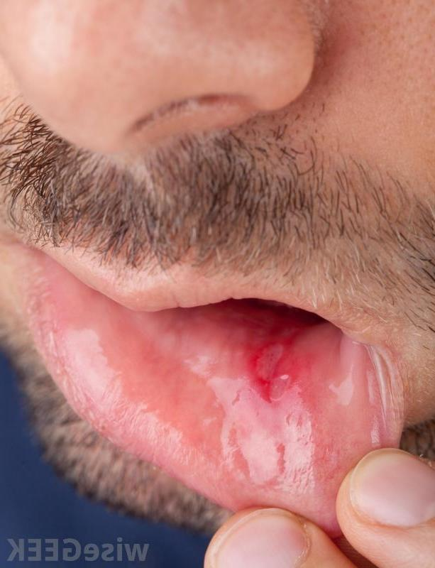 Search infected canker sores in mouth reanimators