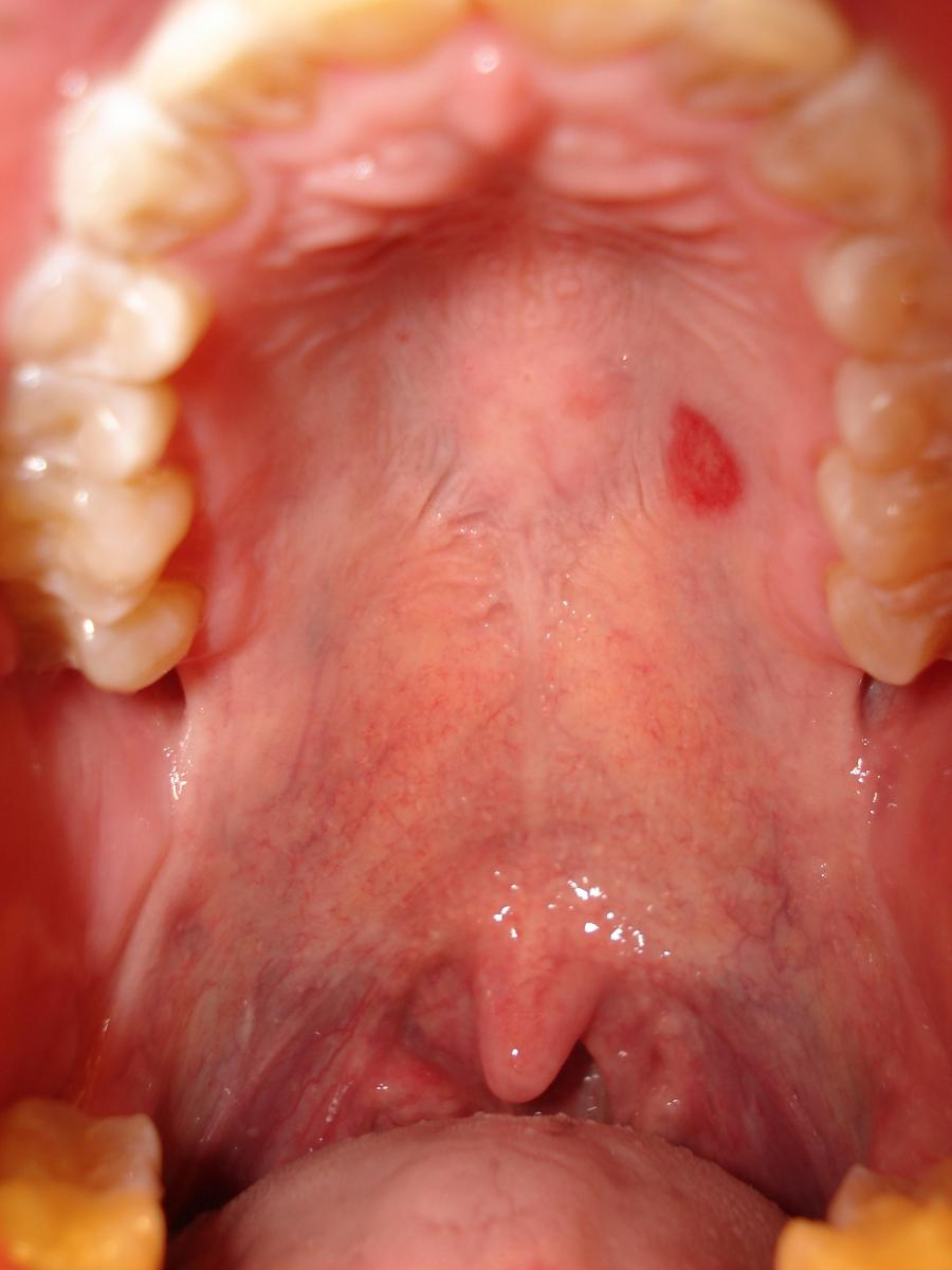 Blisters Roof Of Mouth 65