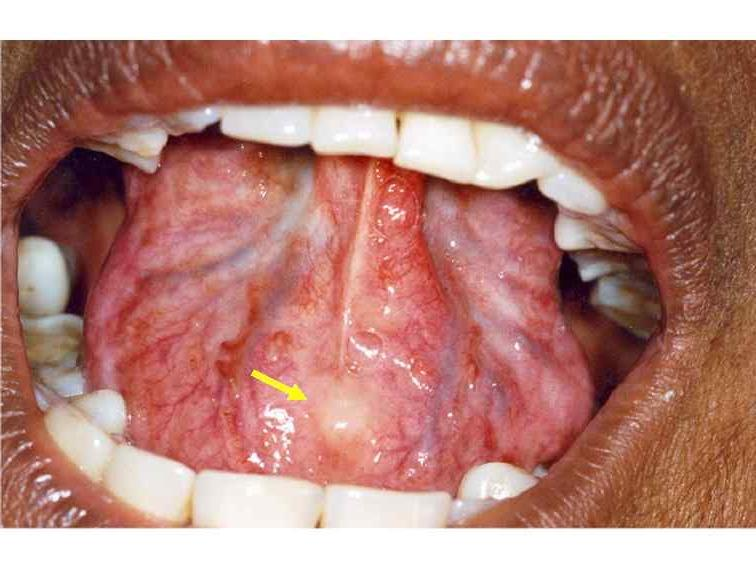 Photos of oral cancer on floor of mouth for Floor of mouth cancer