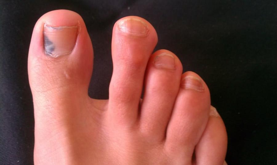 Черные точки на пальцах ног фото