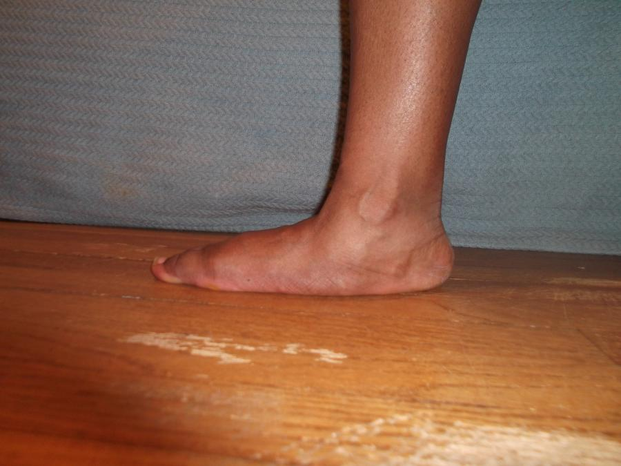 pic 3. left flexible flat foot (weight bearing)