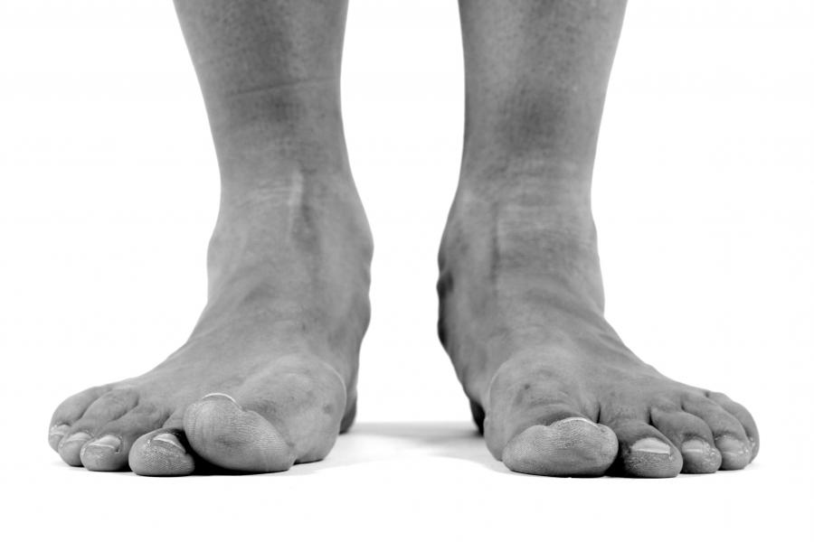 Feet are considered flat when the arch is flattened or the foot...