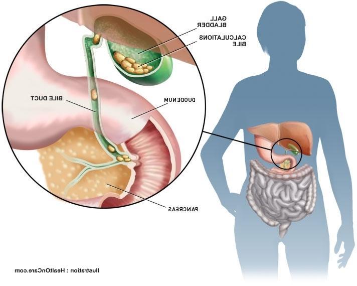 Gall bladder gall stones photos