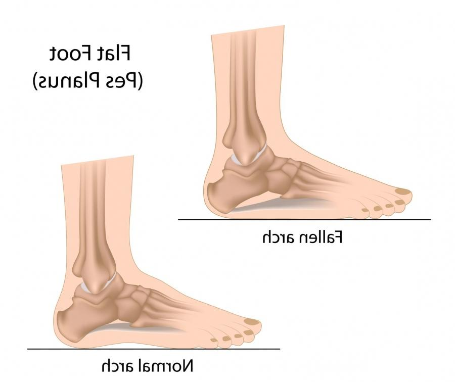 Flat feet, or pes planus, is a condition in which the arch of the...