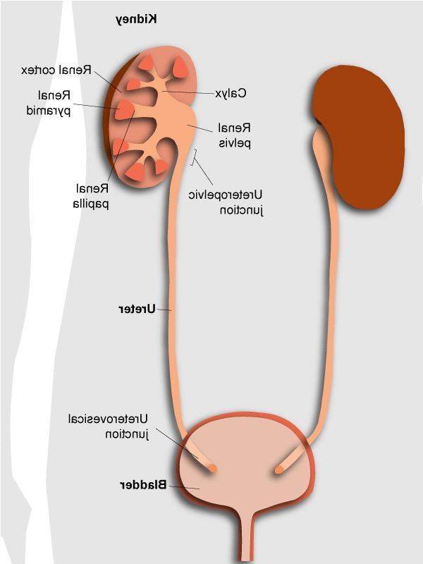 Kidney stones ureter photos