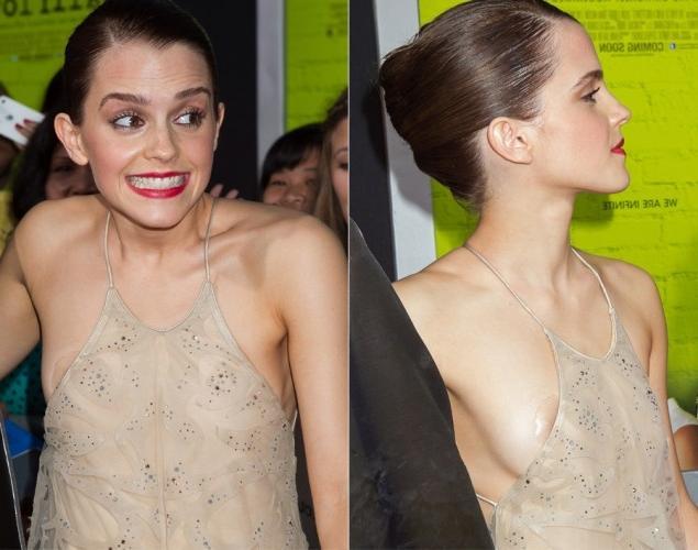 Emma Watson suffers a wardrobe malfunction as her backless dress 4