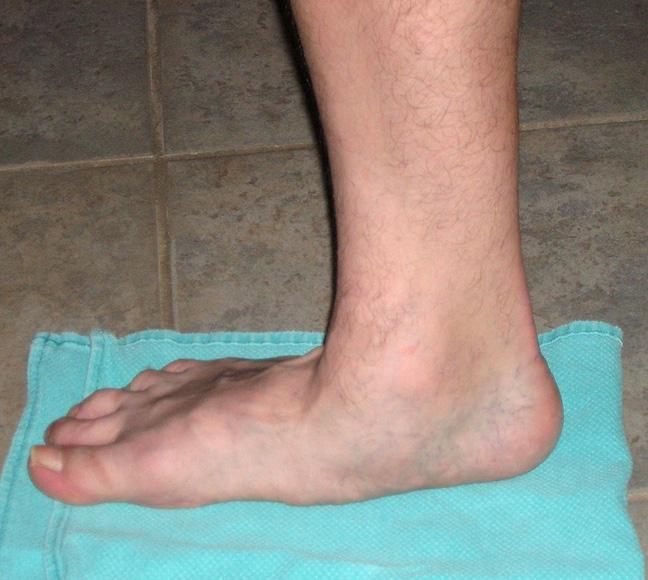 Flat Feet, Heel Pain/Plantar Fascitis: A tearing of the tendon on...