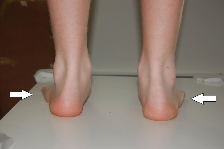 Photo flat feet 3rd degree, total collapse of the arch